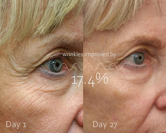 before and after regenerage anti-aging cream
